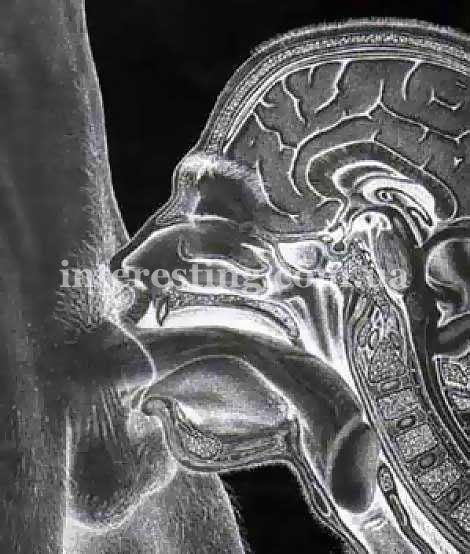 Рентген снимок глубокого минета