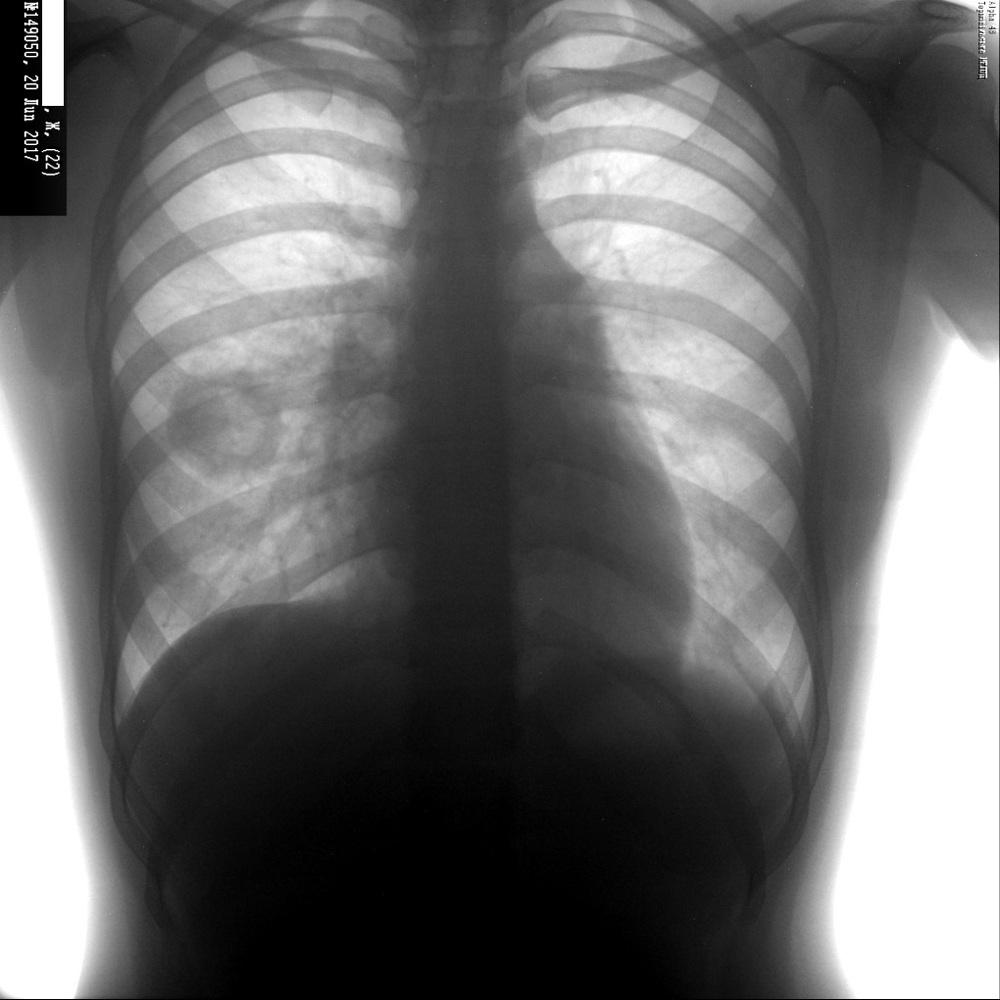 Дырка в легком при астме