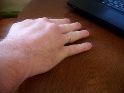 Вот так выглядит неправильно сросшаяся рука после перелома со ...