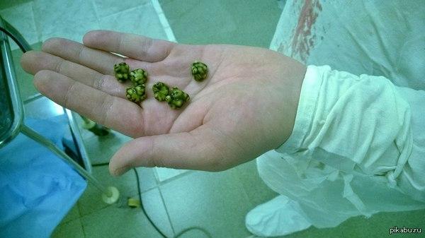 Мелкие камни в желчном пузыре симптомы