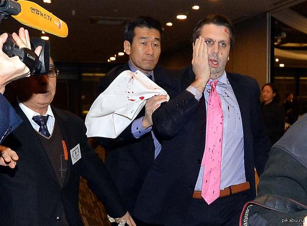 Американскому послу в Южной Корее порезали лицо за подстрекательство. Я не удевлен.