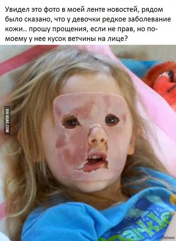 """""""Редкое заболевание кожи"""""""