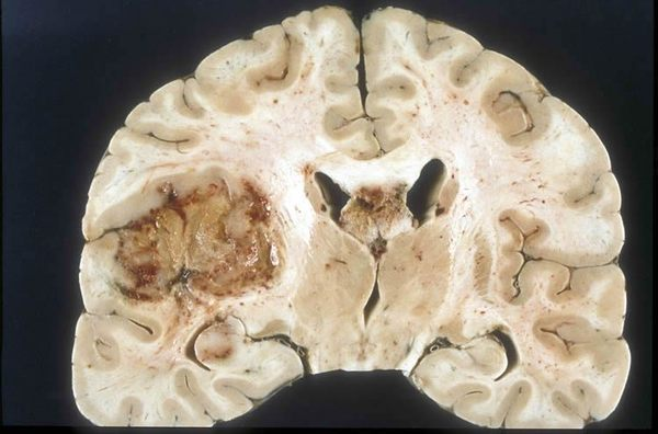 Grade IV Glioblastoma GBM Back to top Description and Location Glioblastoma multiforme GBM is the most common and deadliest of malignant primary brain