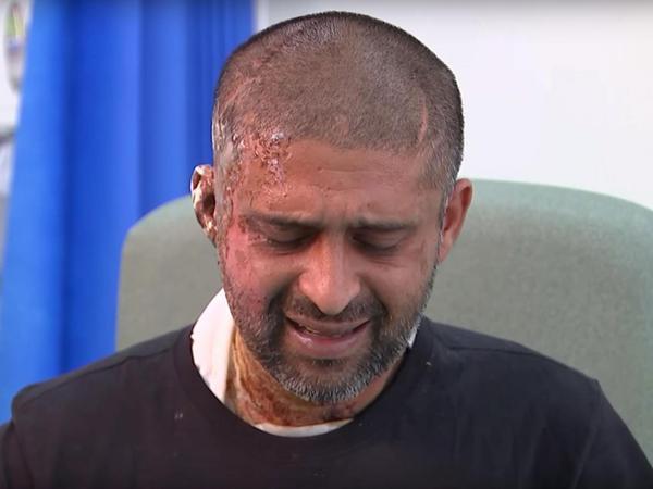 Мусульманин которого облили кислотой хочет знать почему это не классифицируется как теракт новости, мусульмане, Лондон, длиннопост