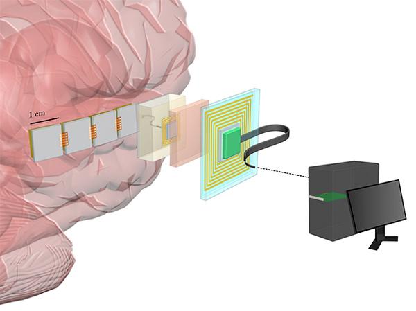 DARPA заказало разработку мозговых имплантатов высокого разрешения для интерфейса «мозг-компьютер» Darpa, нейроинтерфейс, технологии, geektimes, длиннопост