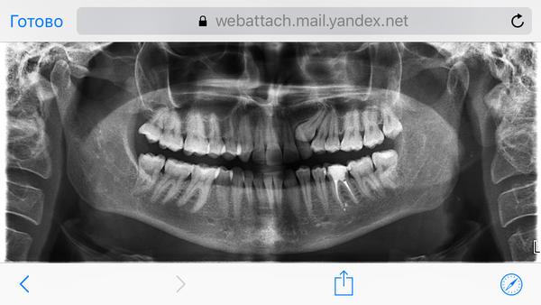 Бибоба берут в рот посшле жопы с говном скачать на телефон фото 93-46
