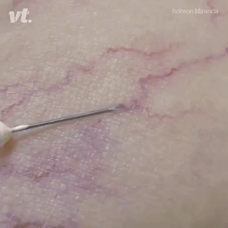 Инъекция для того, чтобы скрыть варикозные вены Медицина, гифка, кровь, наука, 9gag, инъекции