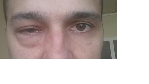 Прошу помощи Пикабу. Болит глаз ничего не помогает. Болезнь, глаза, Втупике