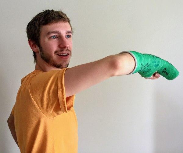 История о том, как фанат Overwatch сломал руку. overwatch, blizzard, Игры