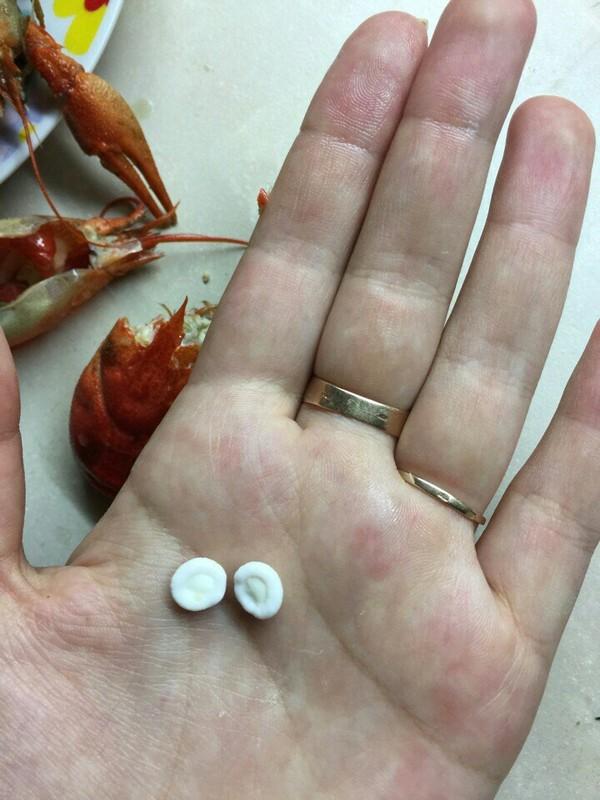 Белые круглые  штуки внутри рака рак, что это?, длиннопост