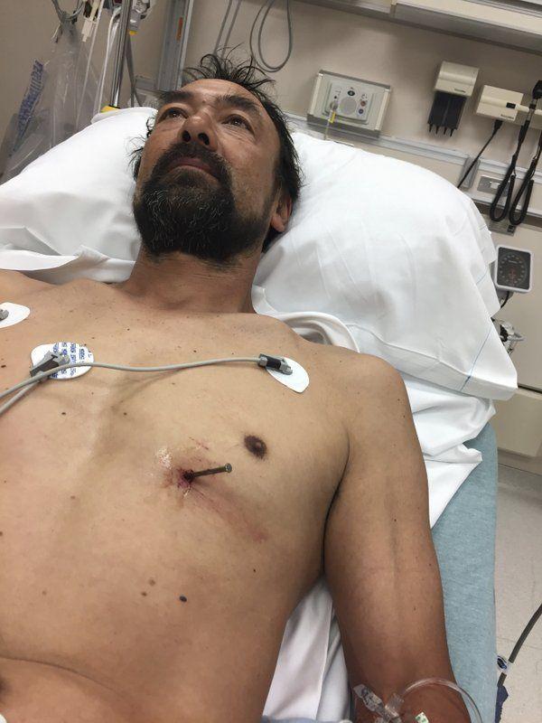 Мужик загнал себе гвоздь в сердце и сам приехал в больницу Мужчина, Гвозди, удача, длиннопост