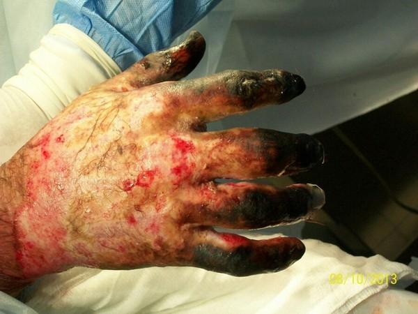 Разработка суставов после ожога массаж при контрактуре коленных суставов