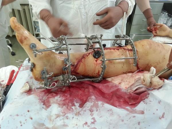Треш. Мясо. Экстренка. Дежурство. жесть, мясо, треш, 18+, открытый перелом, Медицина, травматология, длиннопост