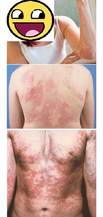 Дисбактериоз кишечника сыпь