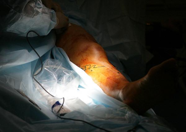 Хирургическое лечение варикоза. ЭВЛК. Ход операции