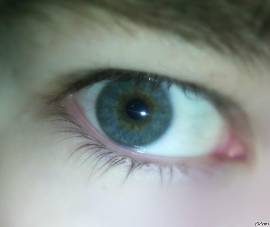 Гетерохромия глаз центральная
