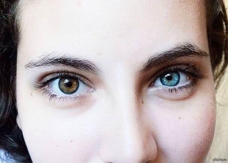 Гетерохромия глаз это
