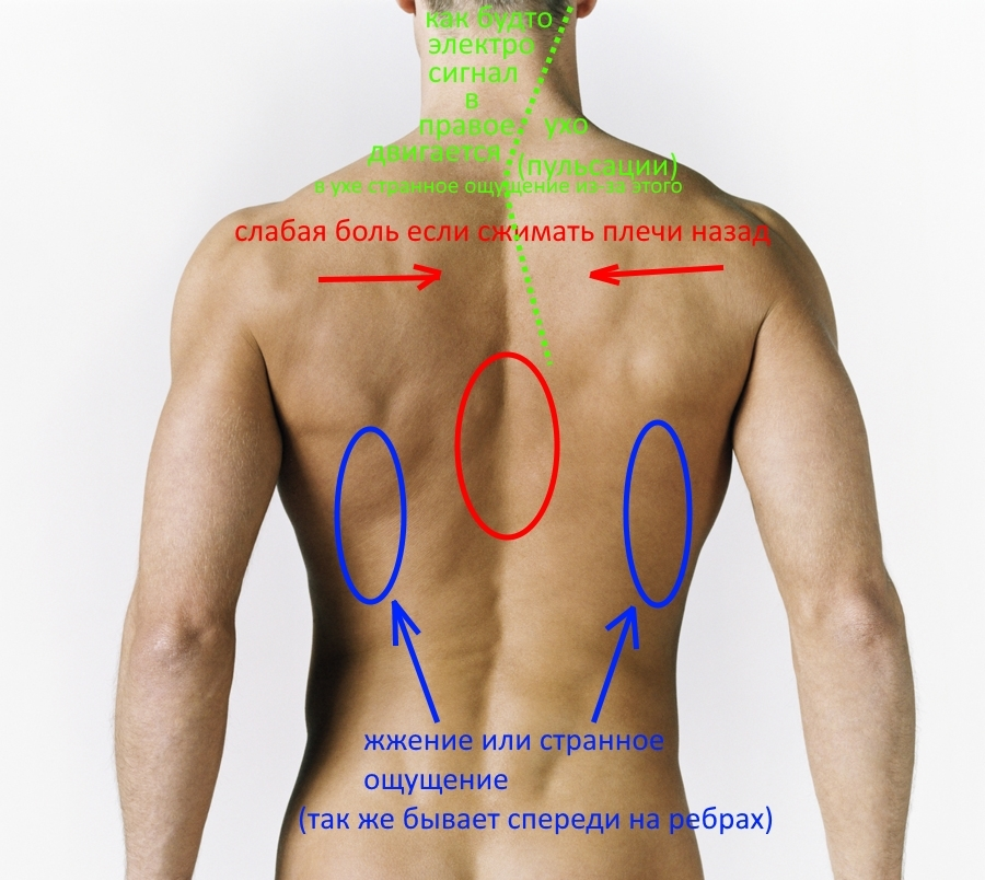 Медикаментозное лечение артроз тазобедренного сустава