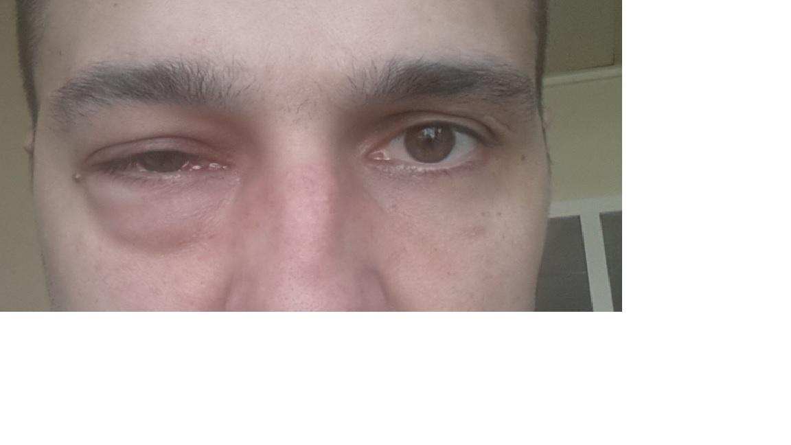 Что помогает от боли в глазах в домашних условиях 434